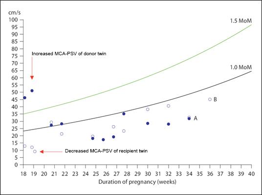 MCA_peak_systolic_velocity_in_TAPS